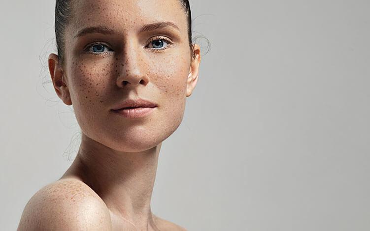 Pele sensível: conheça os cuidados que esse tipo de pele requer