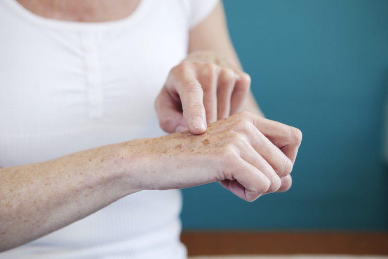 Clareamento de pele: saiba mais sobre esse tratamento | ADCOS