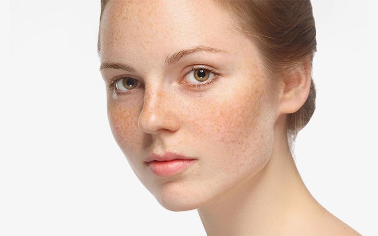 Manchas na pele: tipos e cuidados específicos para cada um