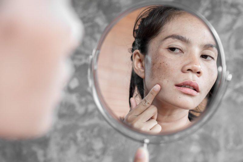 Manchas na pele: tipos e cuidados específicos para cada um | ADCOS