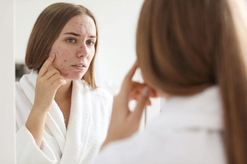 Pele com acne: escolha o protetor solar ideal | ADCOS