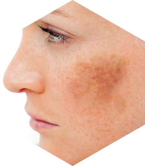 6bc2c48f7 Melasma: saiba como é o tratamento desse tipo de mancha na pele