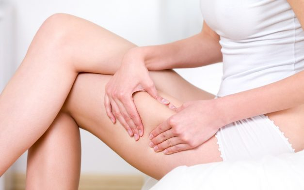 Celulite: quais as causas e como tratar?
