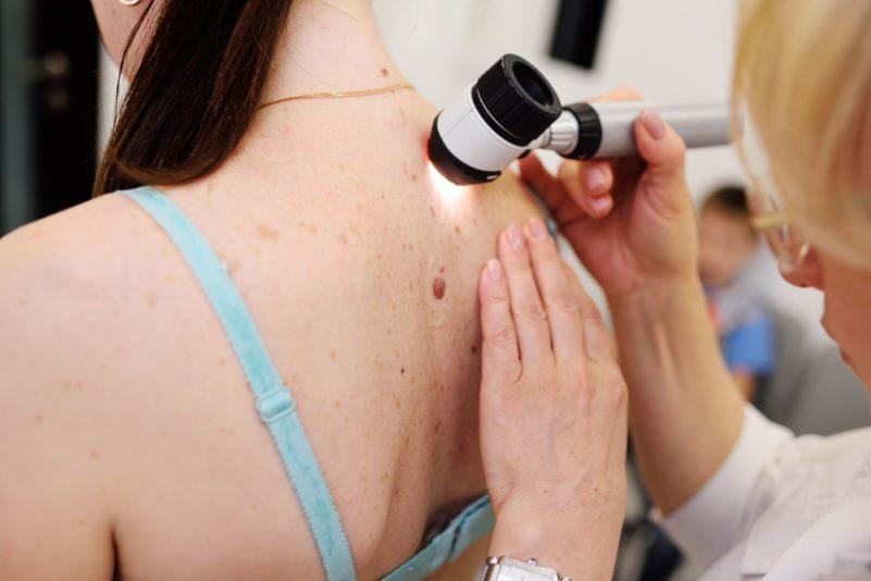 Entenda a diferença entre os tipos de câncer de pele e como se prevenir | ADCOS