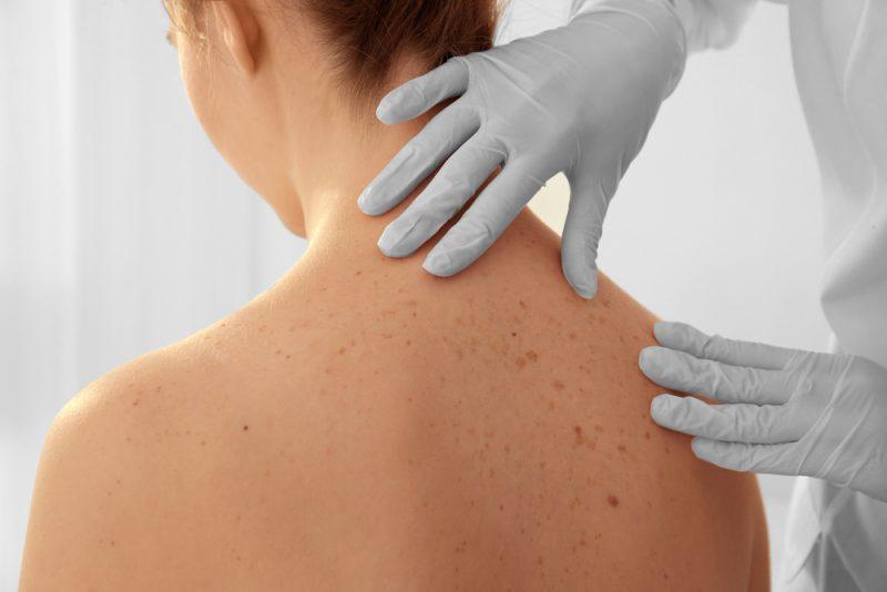 Câncer de pele: quais partes do corpo mais precisam de proteção? | ADCOS